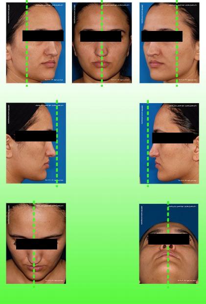 عکاسی دیجیتال جراحی پلاستیک بینی